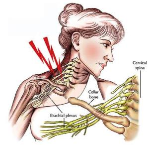 brachial-plexus-stingers-also-known-as-stinge-L-RErvpk
